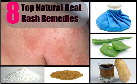 homemade yeasterol yeast infection medication picture 17