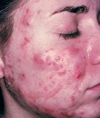 chlorine and cystic acne picture 6