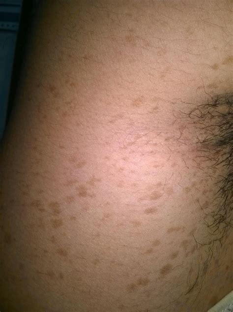 brown patch armpit picture 1