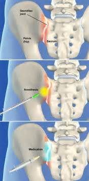 acupressure point for pain in sacroiliac joint picture 13