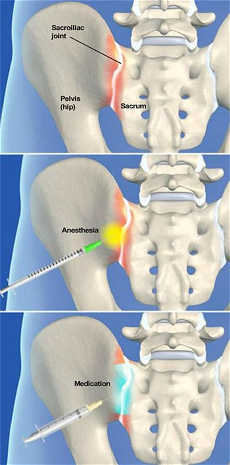 cures for sacraliliac joint picture 17