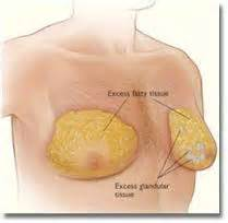 cost of breast enlargement picture 1