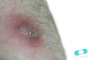 icd code boil on skin picture 14