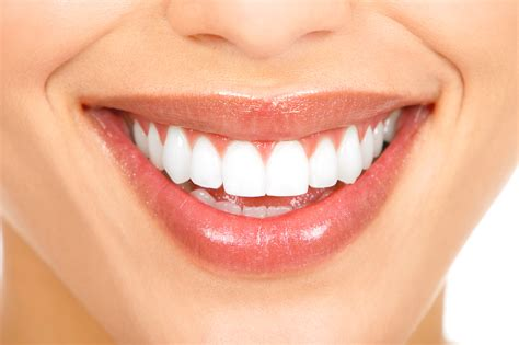 teeth whitening picture 1