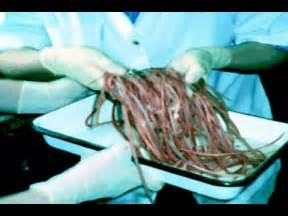 pictures of white intestinal parasites or worms picture 7
