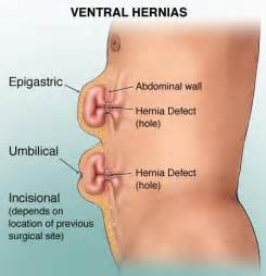hernia pressing on the bowels picture 9
