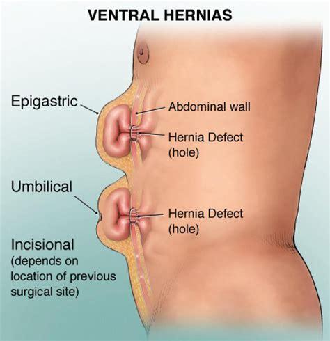 carbuncles symptoms picture 6
