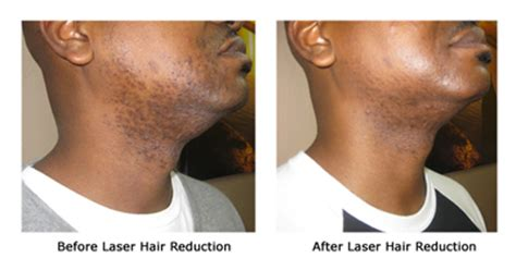 coolglide laser hair removal michigan picture 9