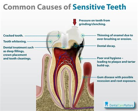 what to do for sensitive teeth picture 1