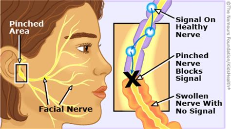 what nerves are affected by herpes picture 11