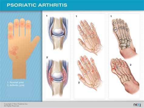 joint inflamation picture 5