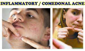 what is acne inflammation picture 11
