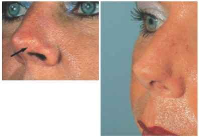 alternative skin cancer treatment picture 10
