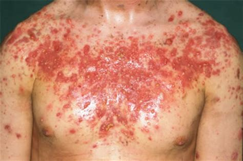 causes of adult acne picture 3