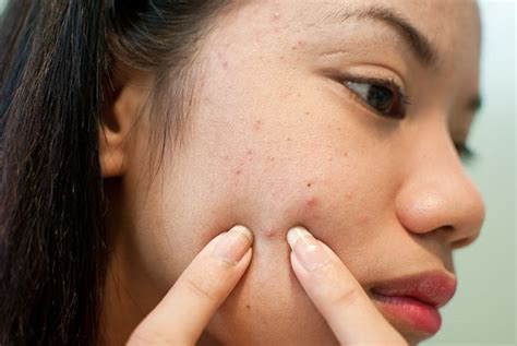 at what age does acne start picture 9