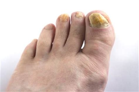 toe nails yellow from smoking picture 7