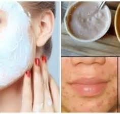 fat burners and acne on face picture 4