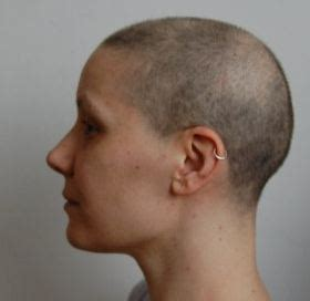 chemotherapy hair loss picture 2