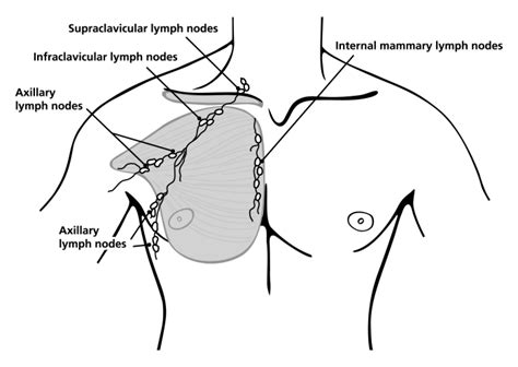 can hashimoto's thyroiditis cause swelling axillary lymph nodes picture 11