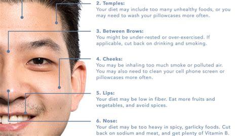 acne breakout symptoms of picture 7