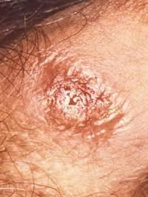 symptoms of genital herpes picture 9