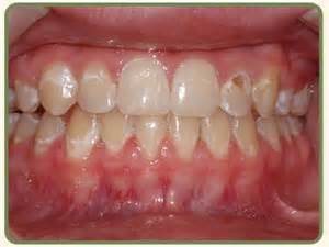 decalcification of teeth picture 15