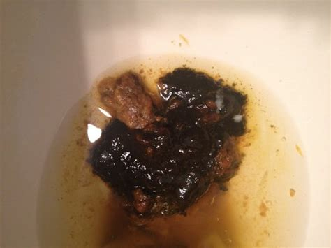 bowel movements very dark to black picture 9