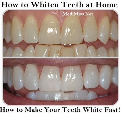 whiten teeth without perioxide or bleach picture 18