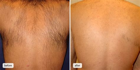 colorado hair removal picture 6