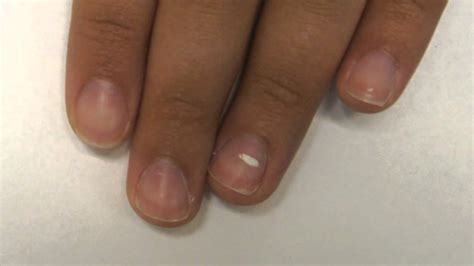 white line in nail picture 7