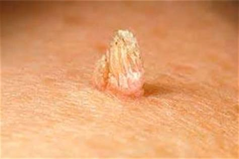 type of genital wart cream in the philippines picture 14