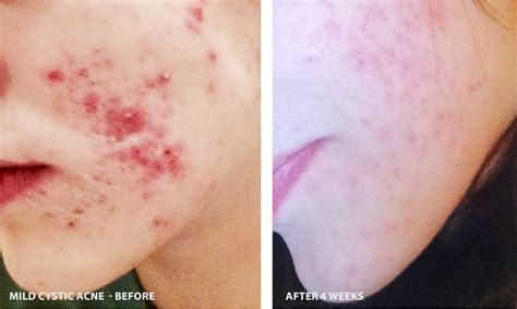 adult cystic acne picture 11