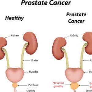 What are the outcome of prostate cancer picture 5