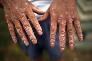 skin conditions agent orange picture 6
