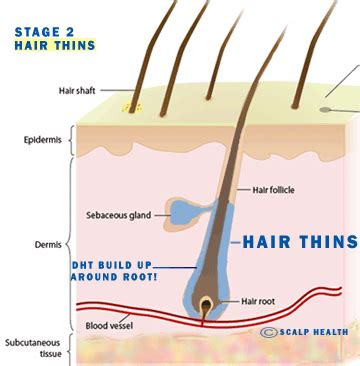 testosterone hair loss shampoo picture 14