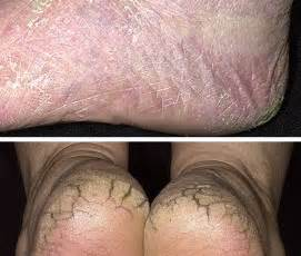 foot skin problems picture 14