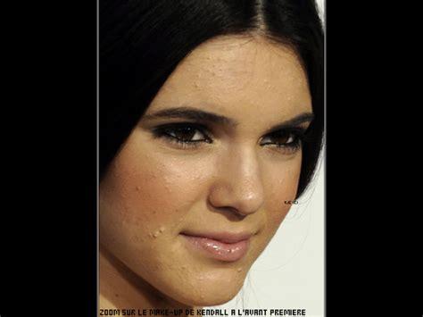 acne treatment laser picture 2