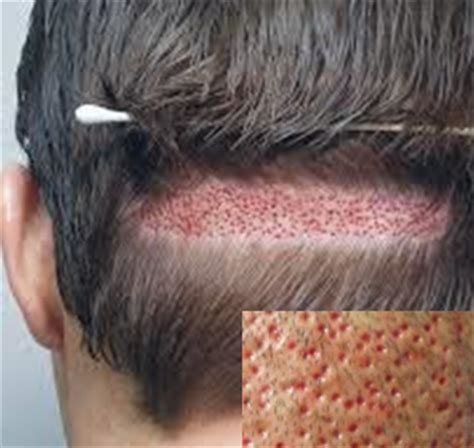 cost of hair transplants picture 15