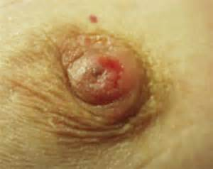 areola skin scaly irritated picture 1