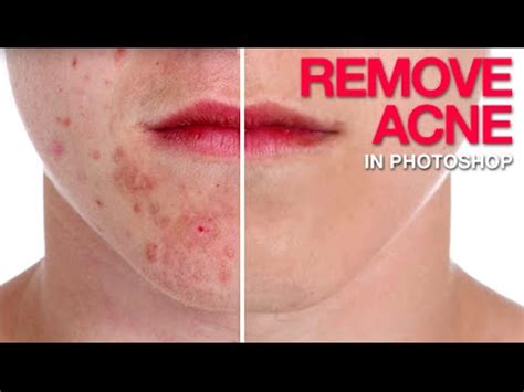 how to remove acne scars from years ago picture 3