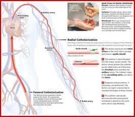 male self bladder cateterization picture 14