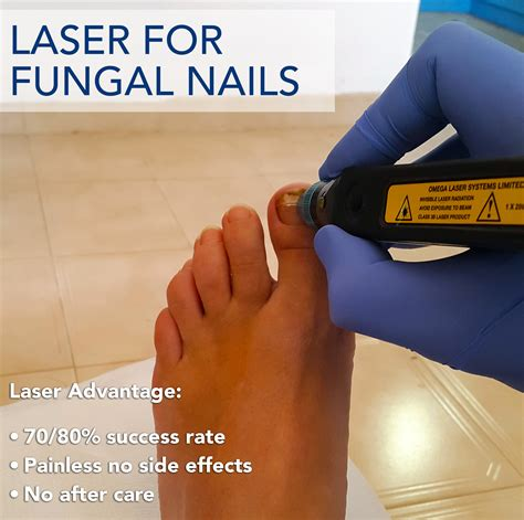 fungal nail laser treatment in louisiana picture 6