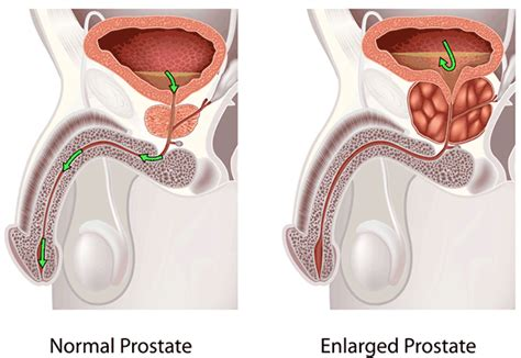 Prostate swollen and age picture 7