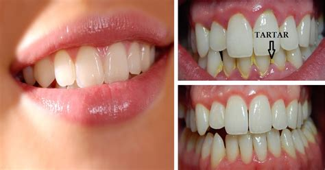 herbal tooth paste for bad breath due to plaque build up picture 2