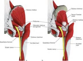 gluteus maximus syndrome picture 7