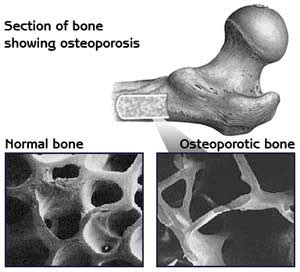 herbal remedies for bone regeneration for older people picture 18