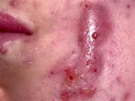 acne cure picture 7