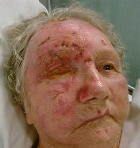 ophthalmic herpes picture 17