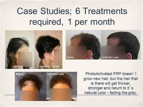 stem cell hair regrowth 2014 picture 6