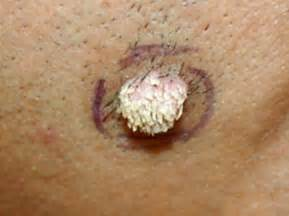 filiform wart picture 2